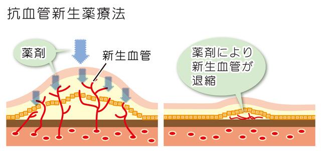 加齢黄斑(抗血管新生薬療法)